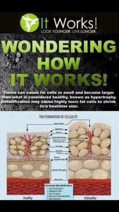 It works! Shrink fat cells!  sadie-villars.com www.facebook.com/ItWorksBySadie
