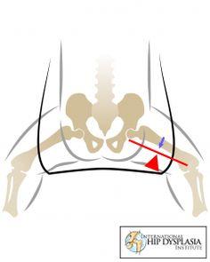 Biomechanics of Babywearing: Part 1 - Baby Positioning