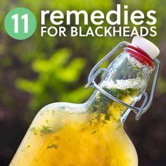 Simple remedies to get rid of blackheads.
