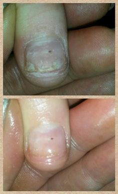 Trauma with this nail 1st Treatment with IBX amazing the difference follow on facebook Jewels Not Tools By Kelly ♥ Award Winning Salon♥