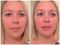 We can add volume to the lip itself in a subtle way (NO DUCK LIPS!) so that they look plumper, have fewer lines in them, and don't disappear when you smile. We can increase the pout of your lower lip, and widen the upper lip so that it doesn't appear to be falling inward on the sides. All of this can be done in a way that looks natural to your face and doesn't change who you are.
