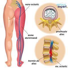 Rheumatoid Arthritis Diet, Arthritis Relief, Pain Relief, Sciatica Relief, Sciatic Nerve, Nerve Pain, Scoliosis Exercises, Stretches, Yoga Sequence For Beginners