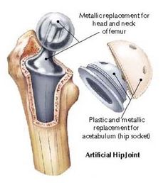 About - Bone Smart is the largest patient advocacy organization & online community provides comprehensive information about joint replacement. Click for additional hip replacement information.