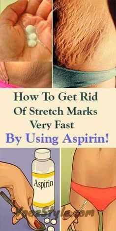 How To Get Rid Of Stretch Marks Very Fast By Using Aspirin!How To Get Rid Of Stretch Marks Very Fast By Using Aspirin! Stretch marks are visible lines which appear on our skin, usually in the abdominal wall, over the thighs, upper arms, buttocks and brea Home Remedies, Natural Remedies, Health Remedies, Beauty Care, Beauty Hacks, Beauty Tips, Beauty Products, Stretch Mark Remedies, Stretch Mark Removal