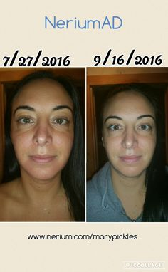 MY personal results! NERIUMAD I LOVE NERIUM if you would like more info please visit me just CLICK this picture & go to my website. www.nerium.com/marypickles