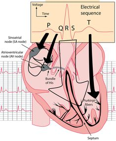Electrocardiograms Nursing School Notes, Nursing Schools, Lpn Schools, Cardiac Nursing, Respiratory Therapy, Physician Assistant, Medical Assistant, Nursing Tips, Nclex