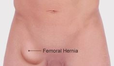 diagnosing what type of a hernia you have is eas…  hernia