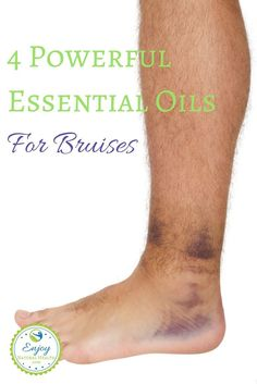 Bruising easily? These powerful oils will help you heal your bruises fast!