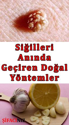Siğilleri Anında Geçiren Doğal Yöntemler Warts are caused by weakening of the immune system. Visually annoying warts can sometimes even be contagious so you shouldn't be late to take precautions. Warts, Health Advice, Natural Medicine, Diet And Nutrition, Immune System, Skin Care Tips, Anti Aging, Healthy Lifestyle, Remedies