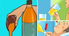 O consumo de vinagre de maçã diluído em água trata eficazmente vários problemas de saúde, incluindo: Indigestão A incapacidade do corpo para digerir adequa