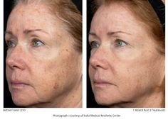 Opinion facial cometic surgeons houston fraxel not pleasant