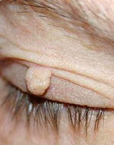 How To Remove Skin Tags At Home | Online bee
