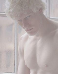 albino man - Pesquisa Google