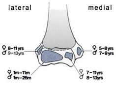 1000+ images about Xuong khop on Pinterest | Tendon tear, Ligaments of the knee and Radiology