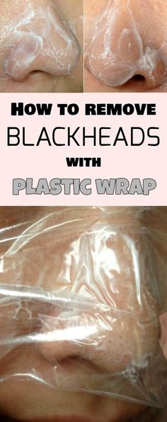 How to remove blackheads with plastic wrap
