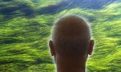 Androgenetic Alopecia, Bald Patches, Increase Hair Growth, Hair Quality, Hair Regrowth, Hair Loss Treatment, Healthy Hair, Natural Hair Styles, Jeju Island