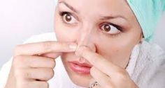 Jak uporać się z wągrami? http://akademiaurody.o12.pl/naturalna-walka-z-wagrami/