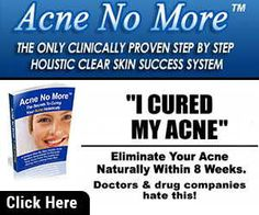 Diat to cure Acne