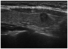 Ultrasound scan of a papillary thyroid microcarcinoma (PTMC) in a 50-year-old female. A hypoechoic nodule, 0.52×0.65 cm in size, was observed in the right lobe. The PTMC has an unclear boundary, an irregular shape and a ratio of length/width of ≥1.
