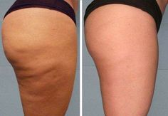 Home remedies for cellulite treatment. How to get rid of cellulite fast? Natural remedies to treat cellulite fast. Cure cellulite naturally and fast at home Cellulite Scrub, Cellulite Cream, Cellulite Remedies, Reduce Cellulite, Cellulite Workout, Hypothyroidism Diet Plan, Fitness Workouts, Anti Cellulite, Abs