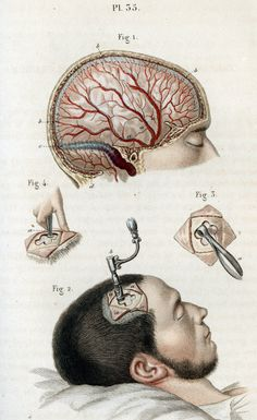 Illustration of cranial surgery  'Broken Bodies, Suffering Spirits' at the Mütter Museum - NYTimes.com