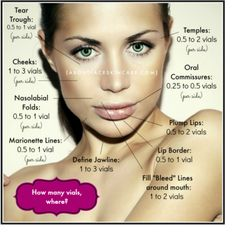 botox injection sites diagram - Google Search | beauty ...