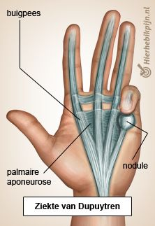 Dupuytrens Dupuytren's Contracture, Human Anatomy And Physiology, Kundalini Yoga, Qigong, Body Language, Alternative Medicine, Human Body, Massage, Health And Beauty