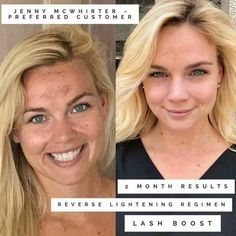 Rodan + Fields Reverse Regimen Before And After. Connect with me to get skin care tips for anti-aging, uneven skin tone, acne, dullness, loss of firmness. Rodan And Fields Reverse, My Rodan And Fields, Skin Care Regimen, Skin Care Tips, Anti Aging Skin Care, Natural Skin Care, Kylie Jenner, Uneven Skin Tone, Homemade Skin Care