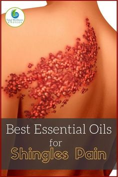 You can Find Relief with these Essential Oils for Shingles Pain! Finding the best essential oils for shingles pain relief can help give you reprieve from this very painful and discomforting disease. Shingles also known Essential Oils For Shingles, Essential Oils For Pain, Essential Oil Uses, Young Living Essential Oils, Shingles Remedies, Elixir Floral, Young Living Oils, Doterra Essential Oils, Doterra Blends
