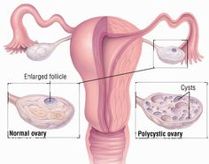 Polycystic Ovary Syndrome - Effective Natural Treatment