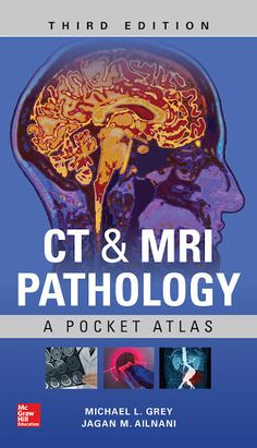 Sleisenger and fordtrans gastrointestinal and liver disease 10th ct mri pathology a pocket atlas third edition 2018 ct mri pathology fandeluxe Gallery