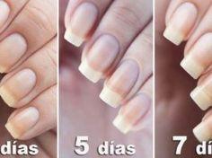 Nail Growth Faster, Grow Nails Faster, How To Grow Nails, Dry Cuticles, Damaged Nails, Lemongrass Oil, Beauty Soap, Strong Nails, Nail Treatment