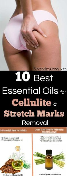 Essential Oils for Cellulite and Stretch Marks Removal. Are you tired of cellulite on thigh and bum? And you are wondering how to get rid of cellulite and stretch marks? Then, I'm going to tell you the best essential oils for cellulite removal at home. Essential Oil Cellulite, Essential Oil Stretch Marks, Juniper Essential Oil, Causes Of Cellulite, Cellulite Scrub, Cellulite Remedies, Cedarwood Essential Oil, Grapefruit Essential Oil, Reduce Cellulite