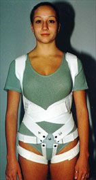 The Only soft scoliosis brace treatment I only wish I'd had options like this. I was allergic to my brace. Also had issues with tens units.