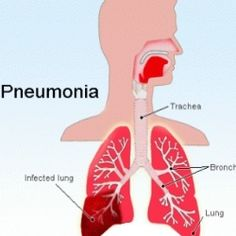 Natural Cure For Pneumonia