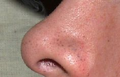 Les points noirs sont un type d'acné qui peut apparaître sur n'importe quelle partie de la peau.