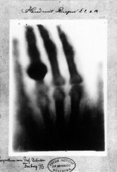 Roentgen's first X-Ray of his wife's hand.