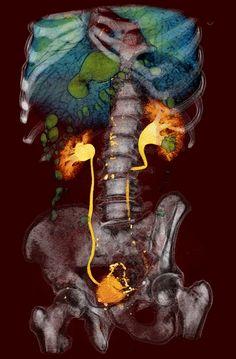 Partes anatómicas.
