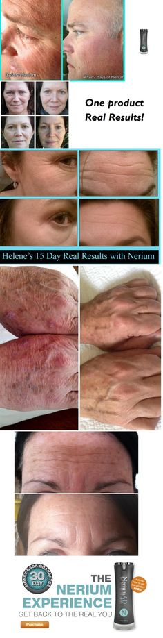 Nerium AD, one product...REAL Results! Skin care...anti aging $80. www.amybrunnquell.nerium.com