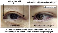 Epicanthus - Epicantal fold - Epicanthic fold - Some studies and doctors say is more common in EDS than in the general population in those of not of asian ancestry - doing a web search will give you more info