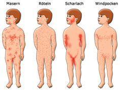 Praxis für Kinder- und Jugendmedizin - Horst Rütschle - 67112 Mutterstadt - Diabetologie / Praxisablauf