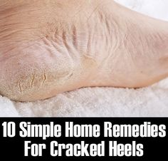 Simple Home Remedies For Cracked Heels: Feeling embarrassed due to Cracked heels? Here are 10 simple home remedies to get rid of cracked heels once and for all. http://www.myhealthtips....