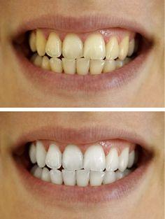 7 Ways to Naturally Whiten Your Teeth
