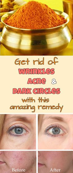 Get rid of wrinkles, acne and dark circles with this amazing remedy.