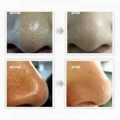 DIY Face Mask To Remove Blackheads!