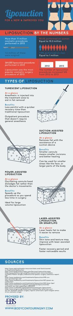 Tumescent liposuction is less painful than traditional liposuction. This option also has a quicker recovery time than its traditional counterpart. Take a look at this NYC liposuction infographic to learn about other types of liposuction procedures.