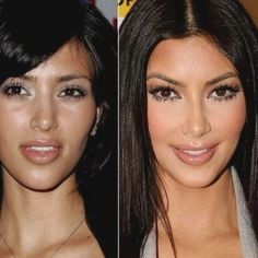 What A Plastic Surgery Has Done To These Famous Celebrities Will Amaze You.