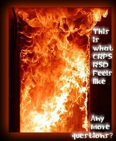 CRPS-RSD this is what it feels like. Plus add hot stabbing jabs, nerve endings going crazy, sensitive to touch and the pain in unimaginable!! I would have 100 babies if I could rid of this. Too bad amputation will not end it either!!