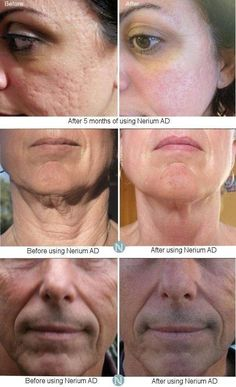 WOW look at the difference in their skin! #Nerium is the hottest #SkinCare on the planet! NOTHING compares to this phenomenal #antioxidant Breakthrough 24 HOUR DAY  NIGHT treatment cream!  Watch a video at wwendy117.theneriumlook.com, or email me at wendhend@aol.com