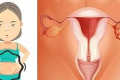 Ovarian Cysts Symptoms -Remedies - ovarian cancer - 1 Weird Trick Treats Root Cause of Ovarian Cysts In Dys - Guaranteed! Signs Of Ovarian Cancer, Ovarian Tumor, Ovarian Cancer Symptoms, Diabetic Meal Plan, Diabetes, Remedies, Weird, Treats, Silent E
